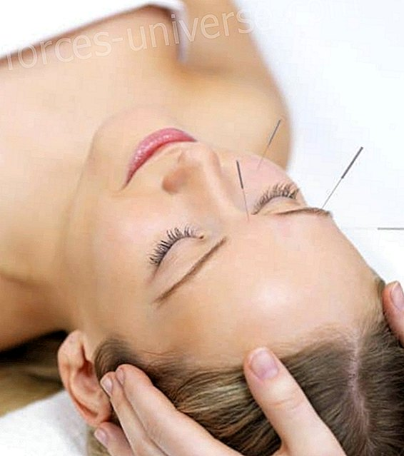 Skull-Acupuncture: bases, benefits and therapeutic systems